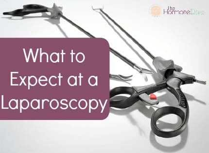 What to Expect at a Laparoscopy