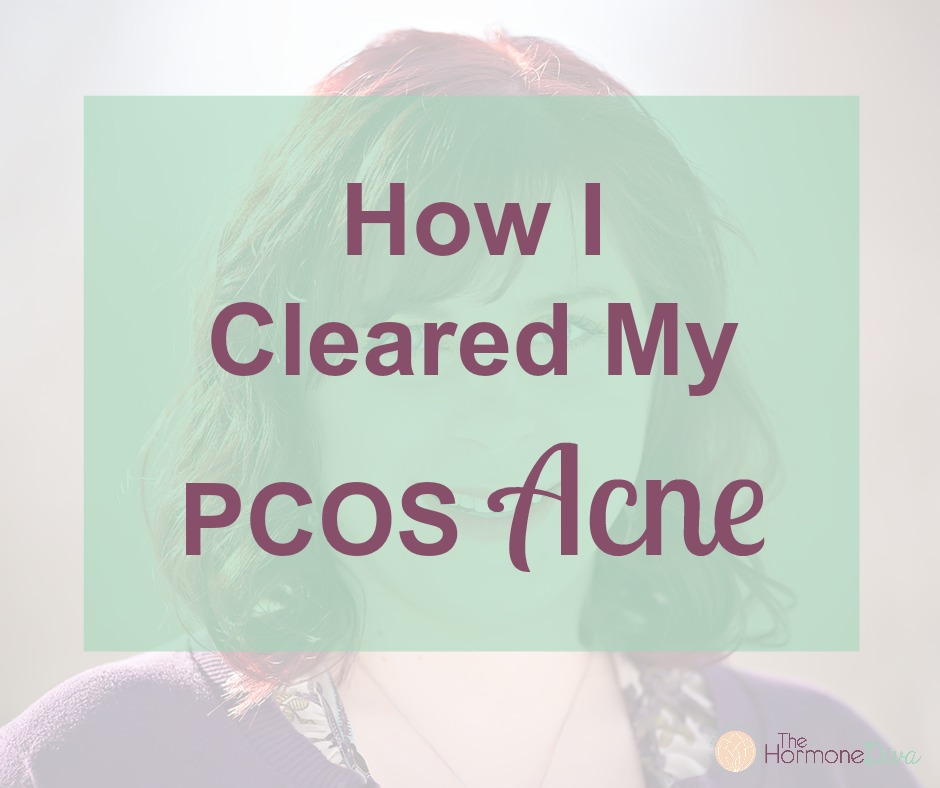 How I Cleared My PCOS Acne | The Hormone Diva